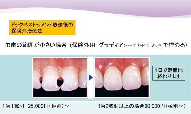 虫歯の範囲が小さい場合